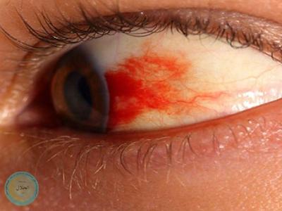 بیماری چشم دیابتی
